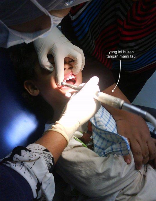 Pasang Pendakap Gigi