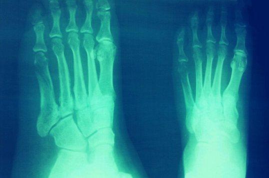 anakmamisayang, cold therapy, ct (computed tomography) scan, doa sakit, ingat Allah, jasa suami, kaki retak, kasut robotcop, orthopedhic, pengalaman pahit manis, redha, reflex sympathetic dystrophy syndrome, rheumathoid arthritis, sabar, saham akhirat, sudeck's atrophy, tips dan rawatan, tulang patah, ultrasonik, ultrasound